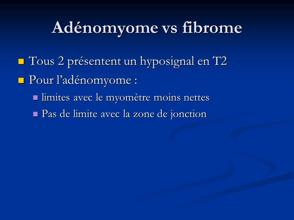 Adénomyome vs fibrome Tous 2 présentent un hyposignal en T2