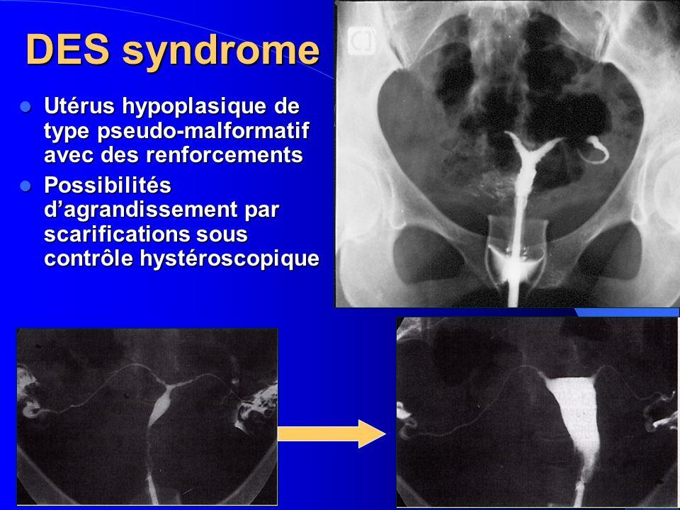 DES syndrome Utérus hypoplasique de type pseudo-malformatif avec des renforcements.