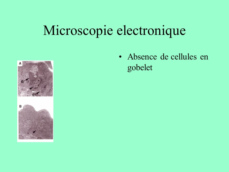 Microscopie electronique