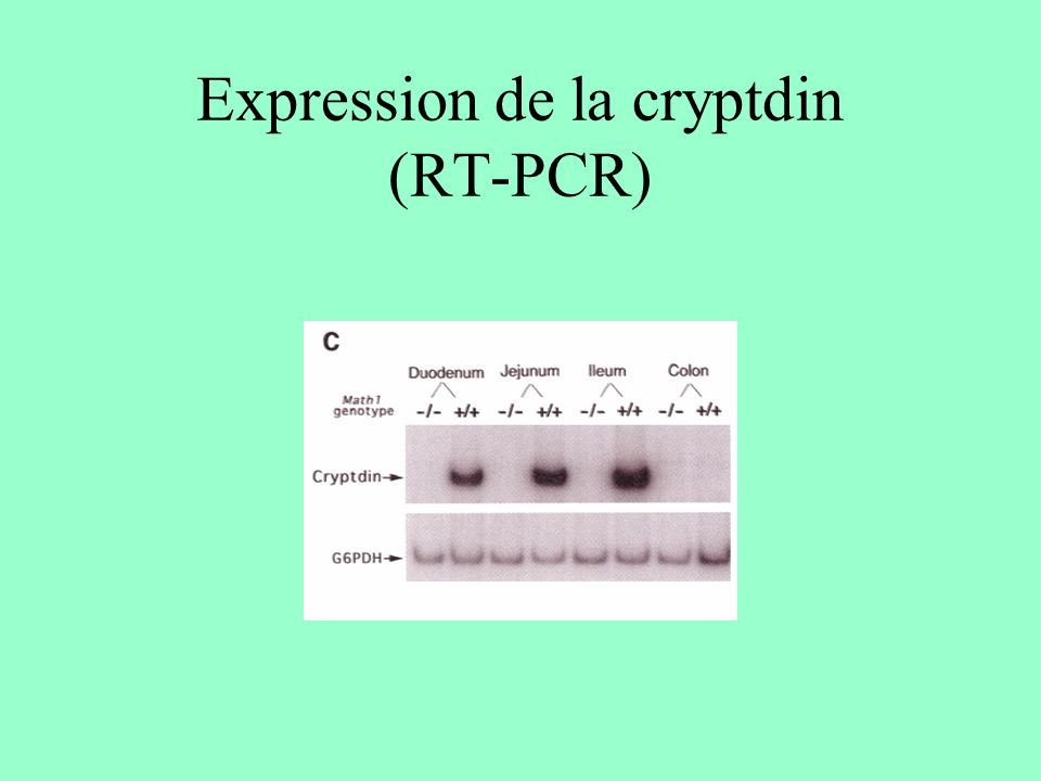 Expression de la cryptdin (RT-PCR)
