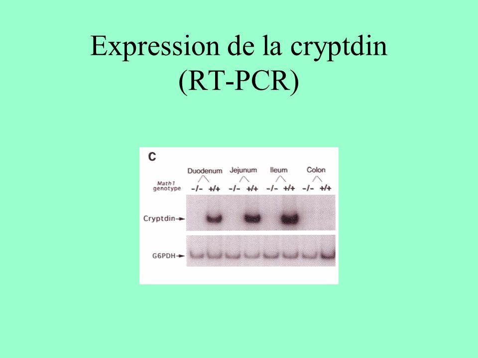 Expression de la cryptdin (RT-PCR)