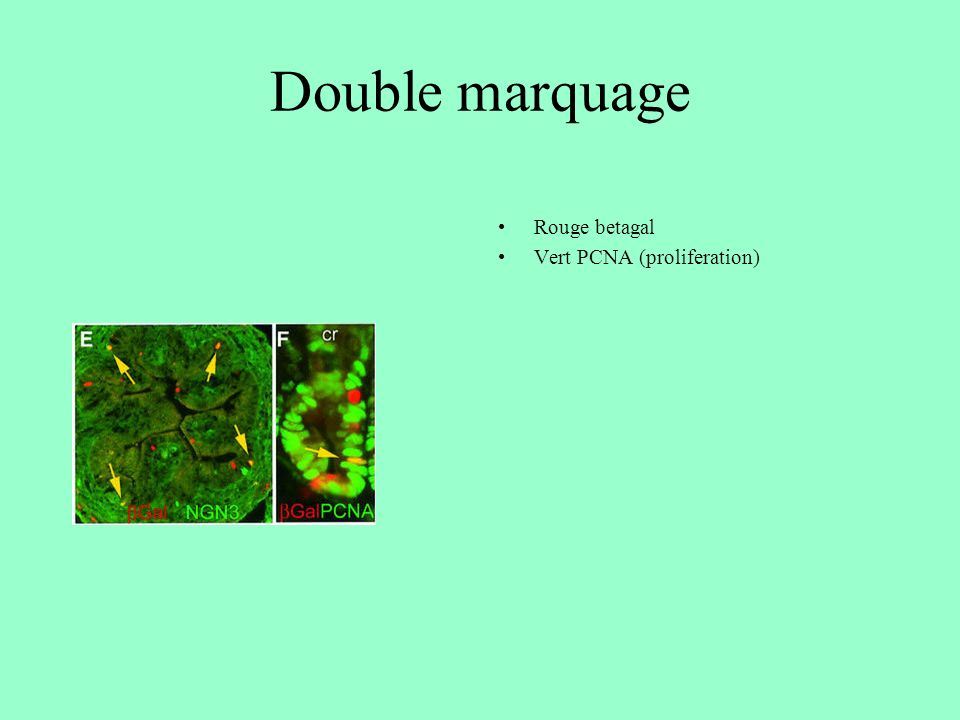 Double marquage Rouge betagal Vert PCNA (proliferation)