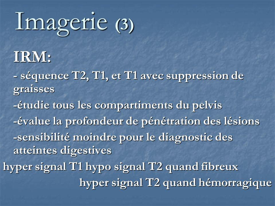 Imagerie (3)IRM: - séquence T2, T1, et T1 avec suppression de graisses. -étudie tous les compartiments du pelvis.