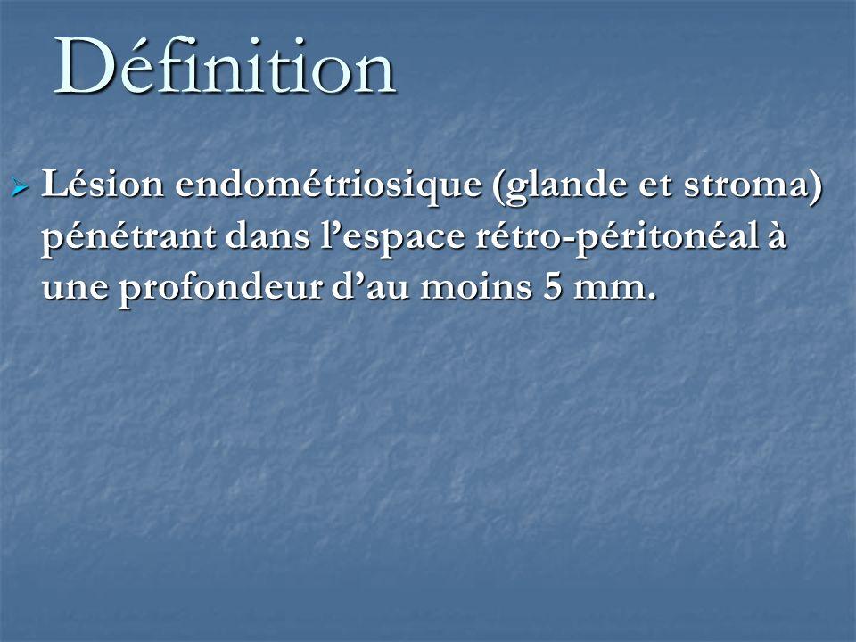 DéfinitionLésion endométriosique (glande et stroma) pénétrant dans l'espace rétro-péritonéal à une profondeur d'au moins 5 mm.