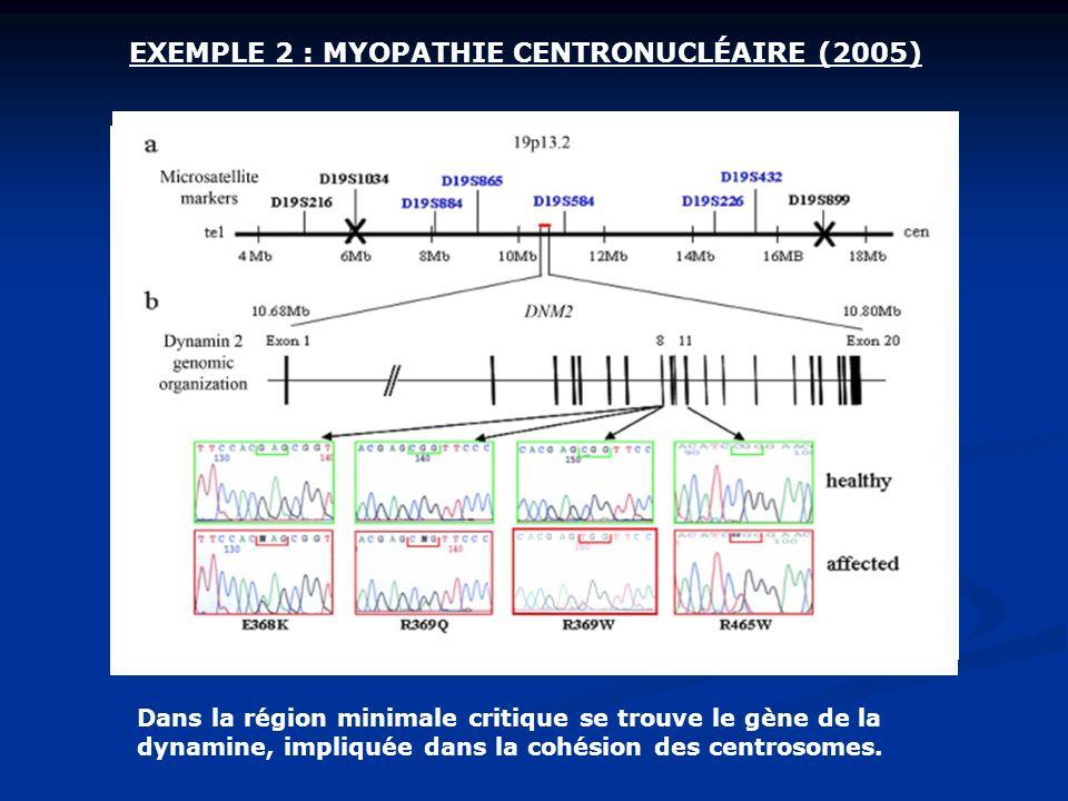 EXEMPLE 2 : MYOPATHIE CENTRONUCLÉAIRE (2005)