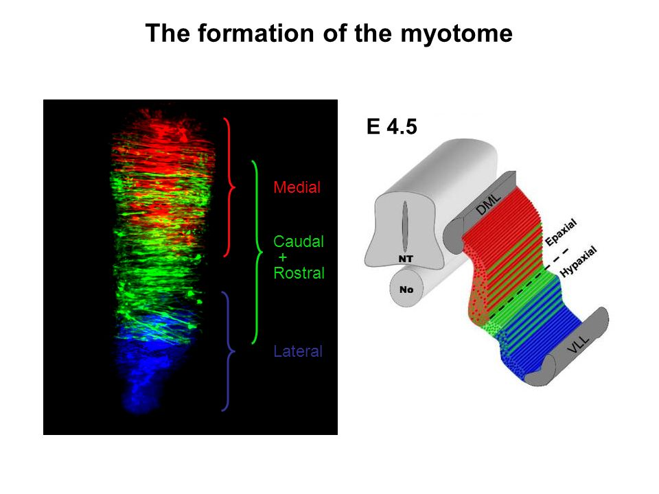 The formation of the myotome
