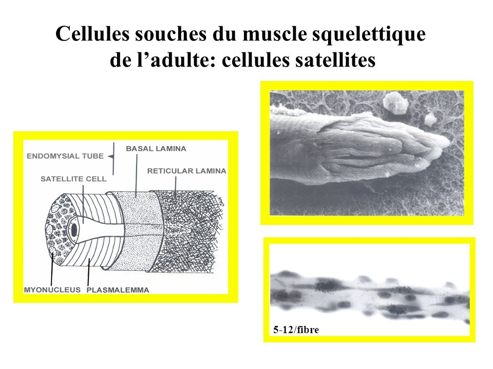 Cellules souches du muscle squelettique