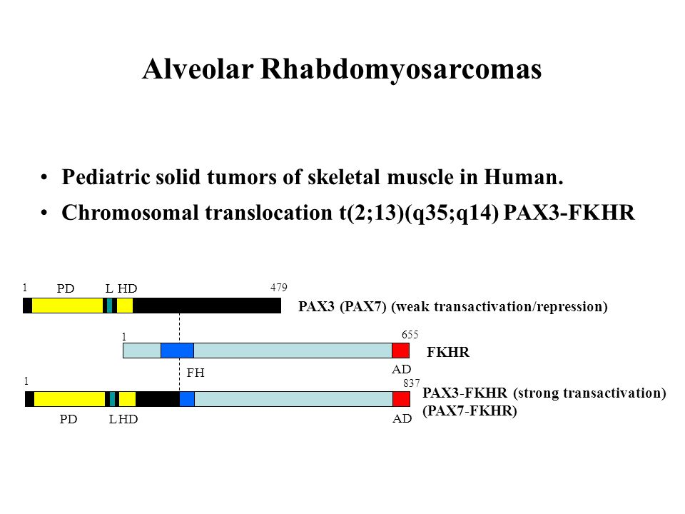 Alveolar Rhabdomyosarcomas