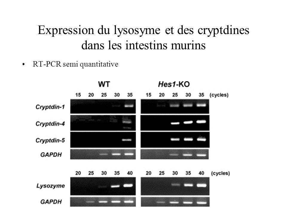 Expression du lysosyme et des cryptdines dans les intestins murins