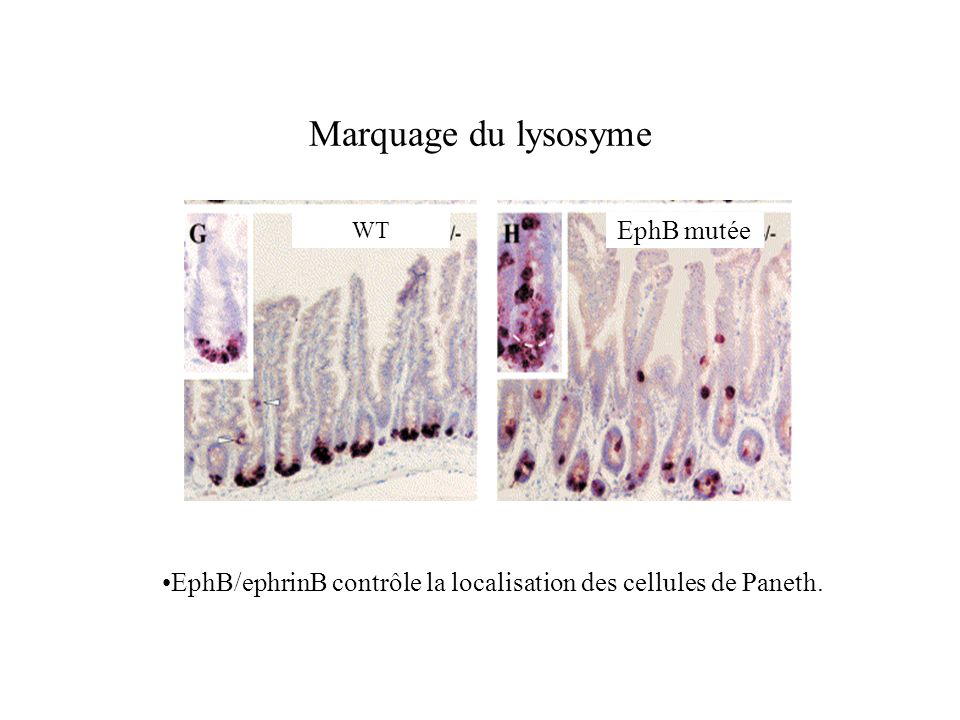 Marquage du lysosyme EphB mutée
