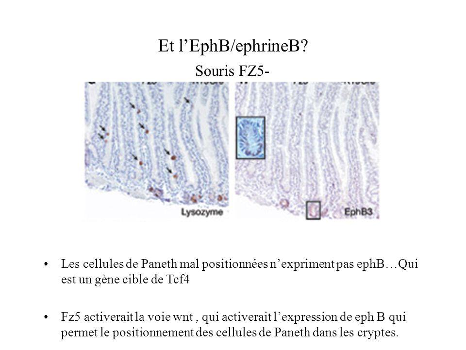 Et l'EphB/ephrineB Souris FZ5-