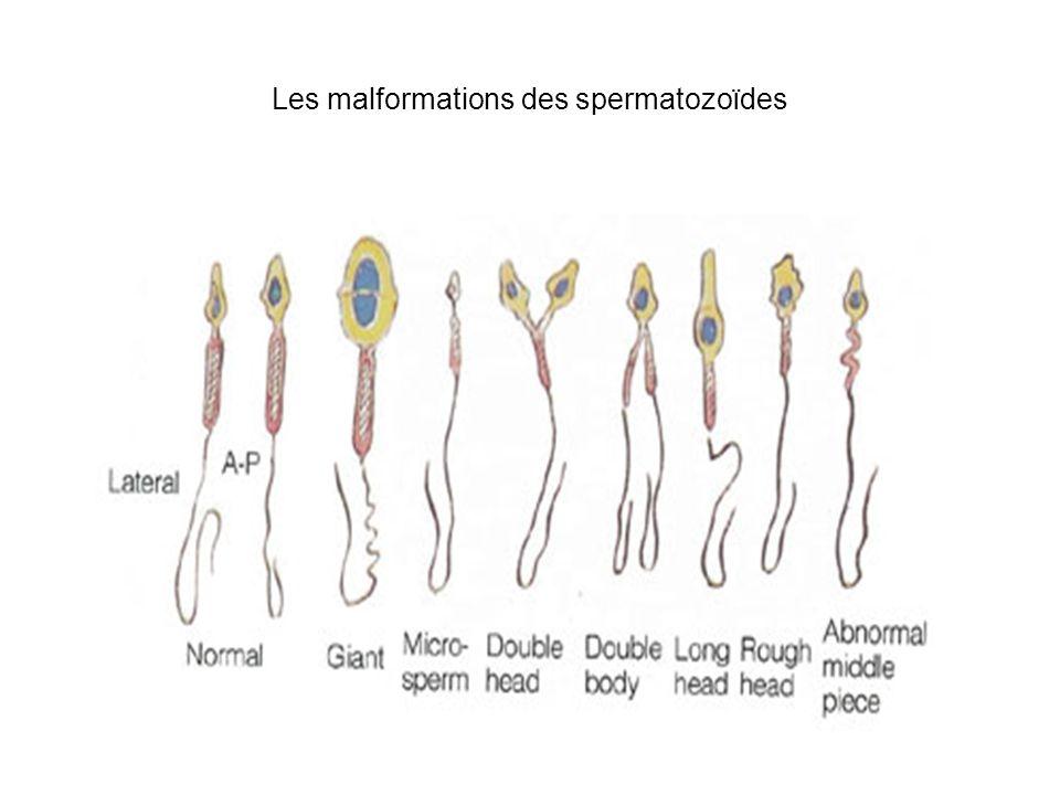 Les malformations des spermatozoïdes