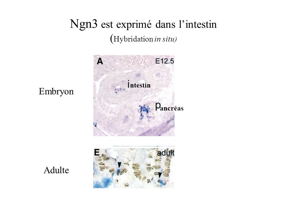 Ngn3 est exprimé dans l'intestin (Hybridation in situ)