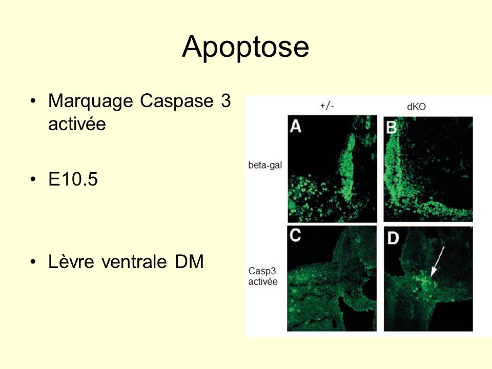 Apoptose Marquage Caspase 3 activée E10.5 Lèvre ventrale DM