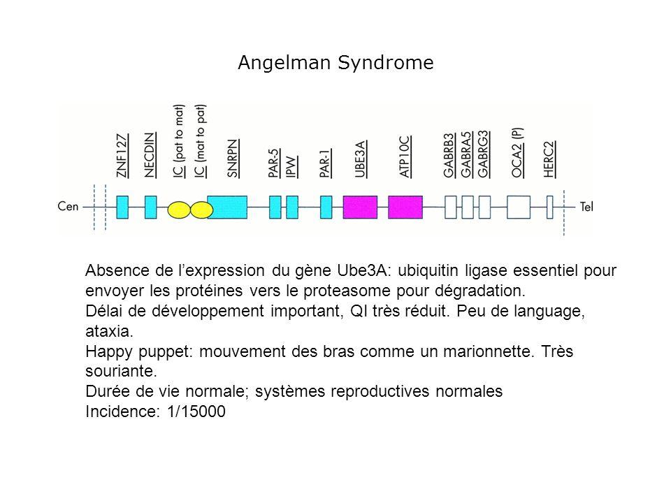Angelman Syndrome Absence de l'expression du gène Ube3A: ubiquitin ligase essentiel pour envoyer les protéines vers le proteasome pour dégradation.