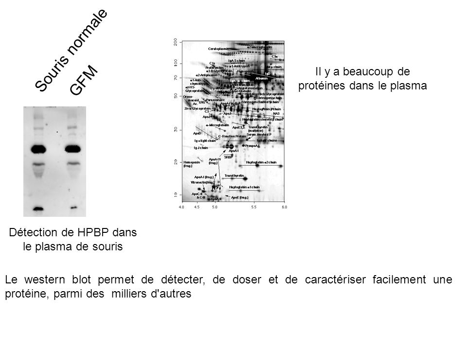 Souris normale GFM Il y a beaucoup de protéines dans le plasma
