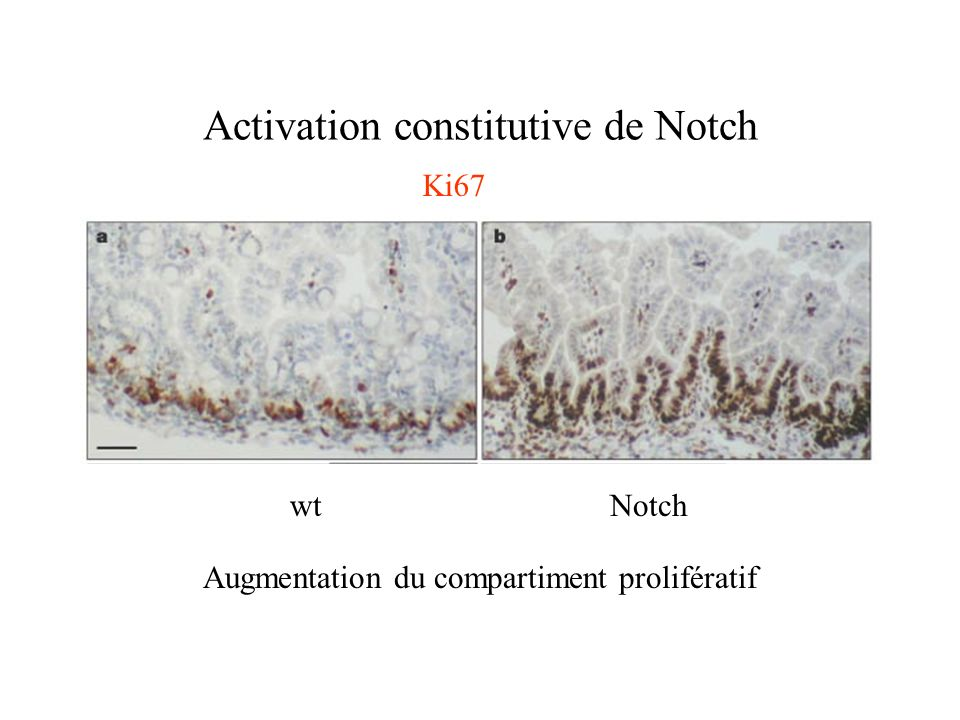 Activation constitutive de Notch