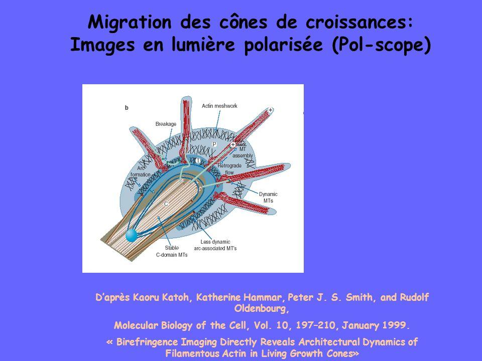 Migration des cônes de croissances: