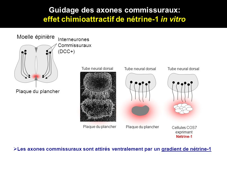 Guidage des axones commissuraux: