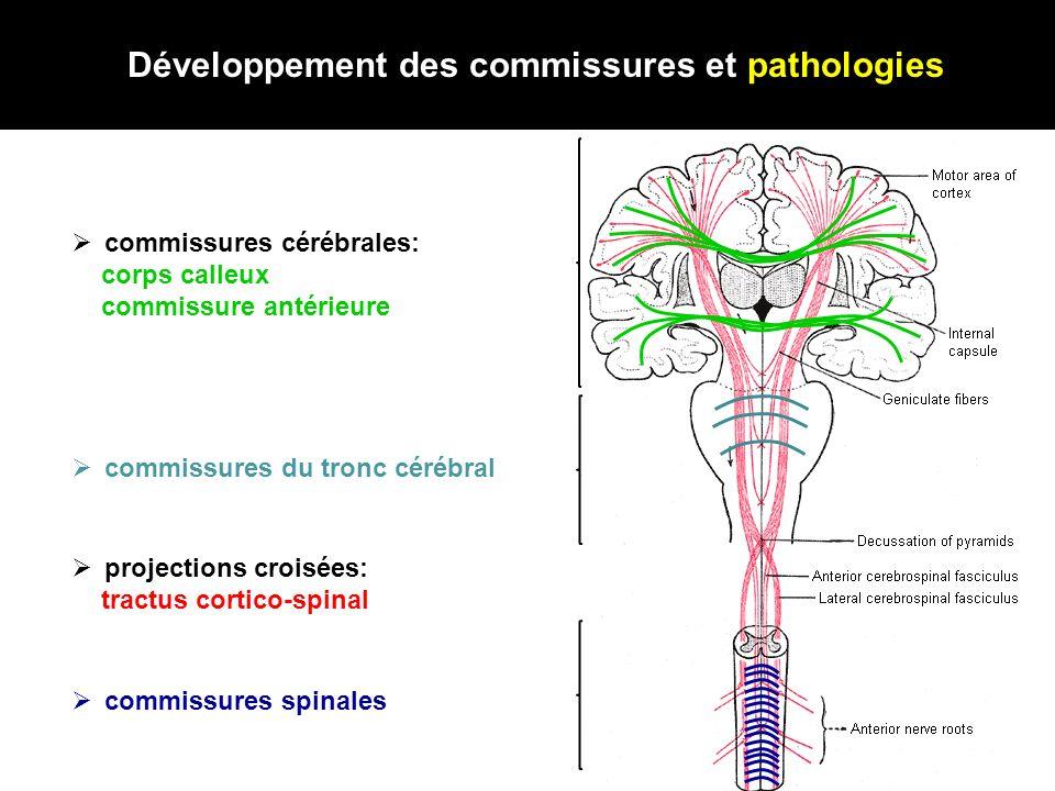 Développement des commissures et pathologies