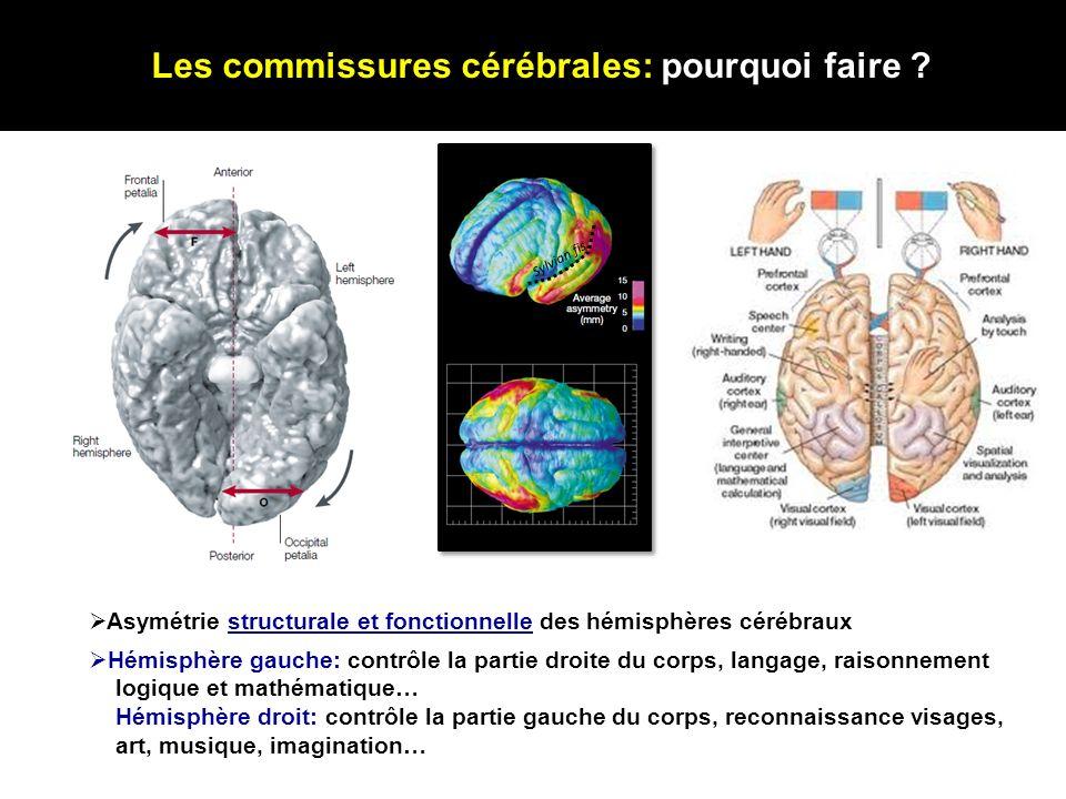 Les commissures cérébrales: pourquoi faire