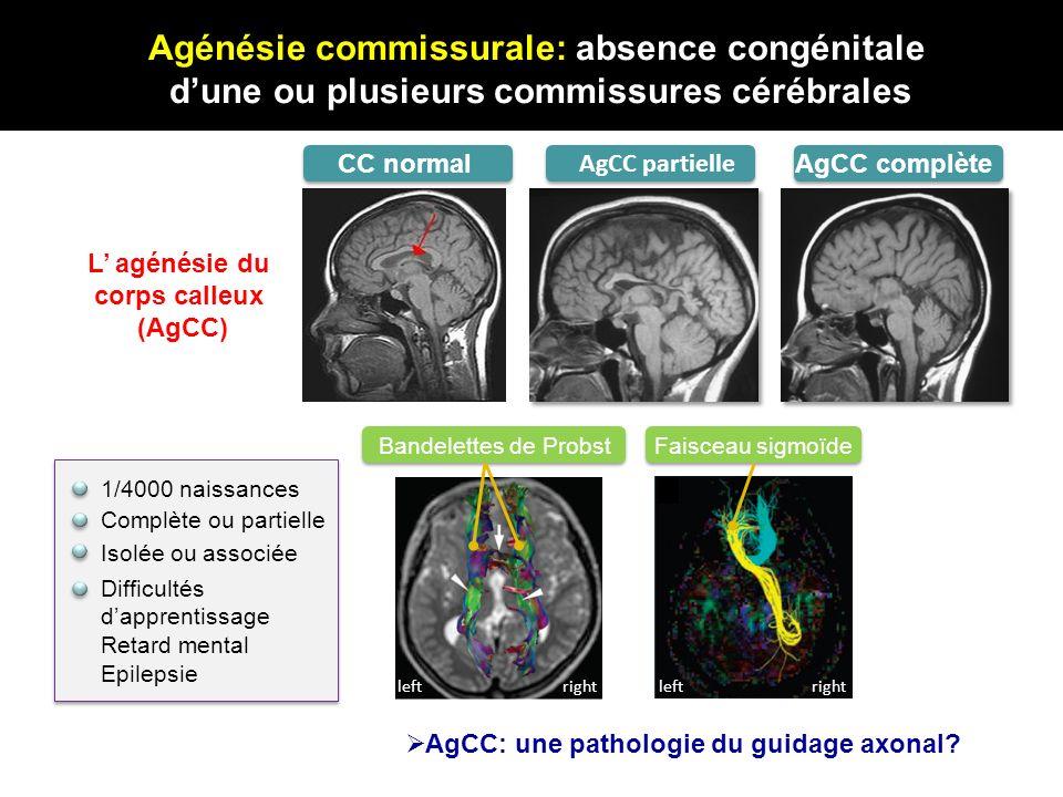 Agénésie commissurale: absence congénitale