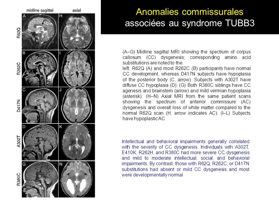 Anomalies commissurales associées au syndrome TUBB3