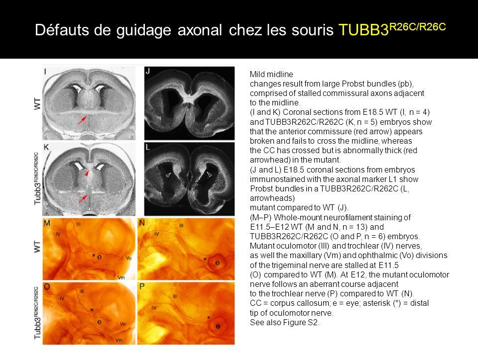Défauts de guidage axonal chez les souris TUBB3R26C/R26C