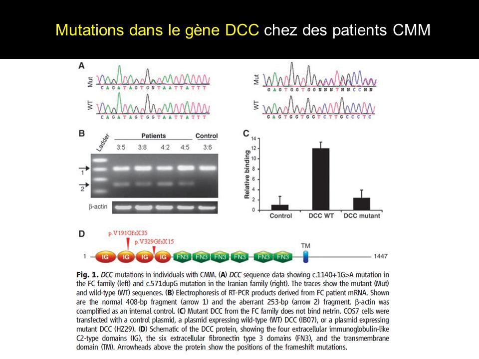 Mutations dans le gène DCC chez des patients CMM
