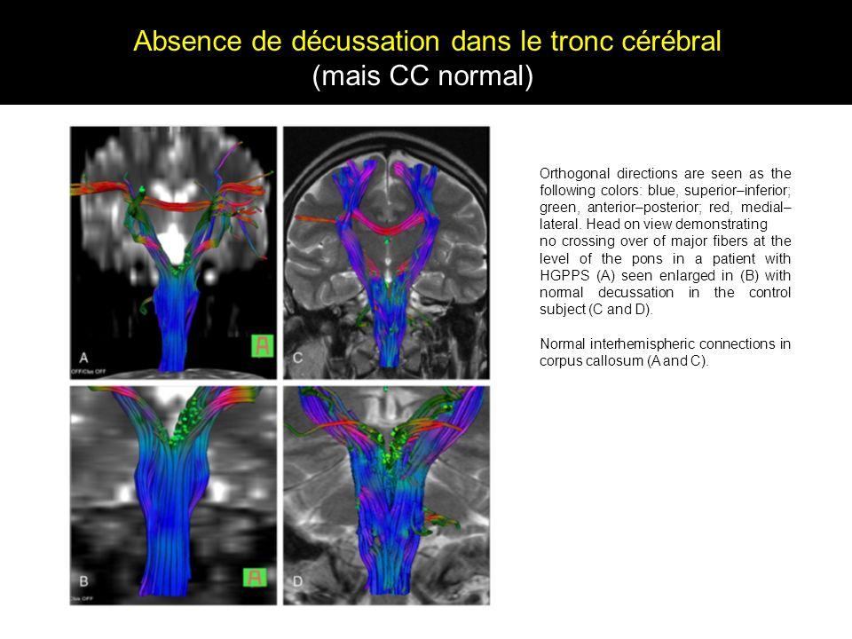 Absence de décussation dans le tronc cérébral
