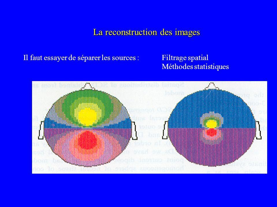 La reconstruction des images