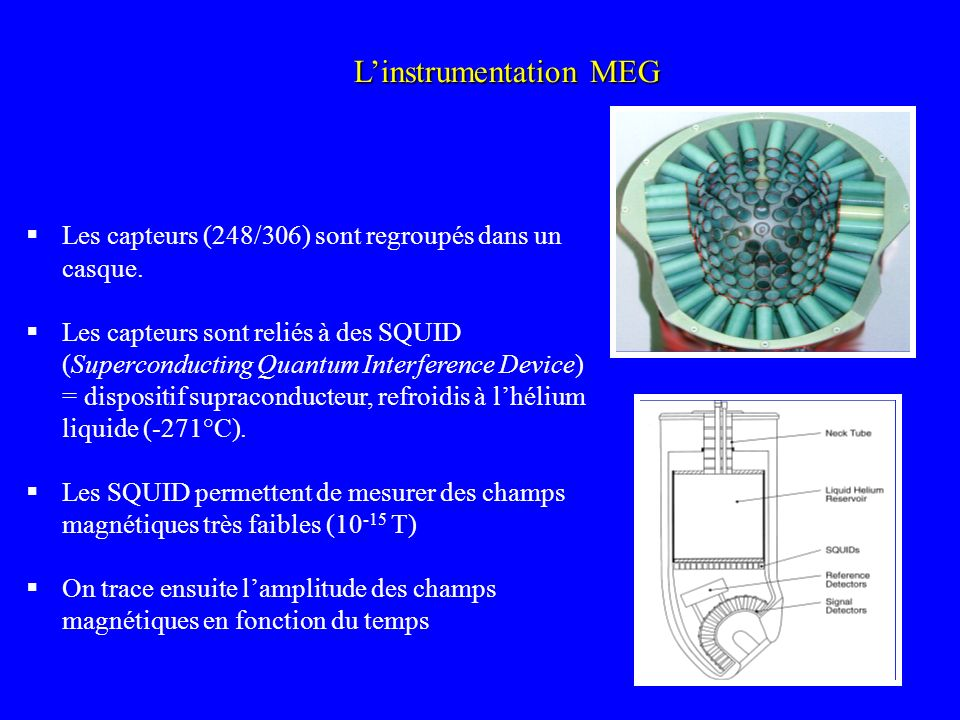 L'instrumentation MEG
