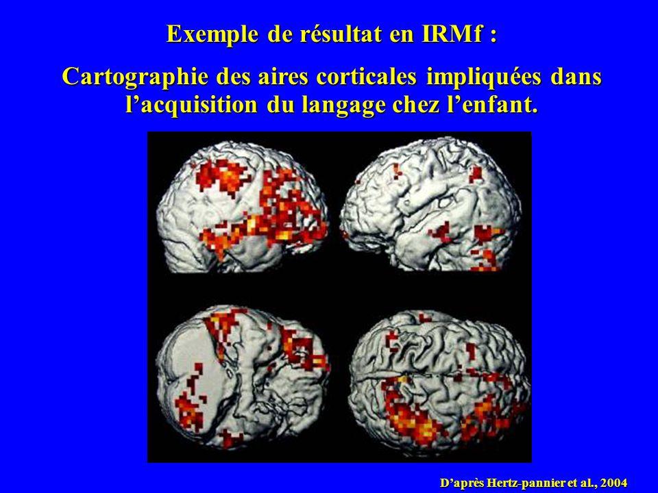 Exemple de résultat en IRMf :