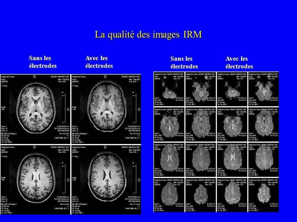 La qualité des images IRM