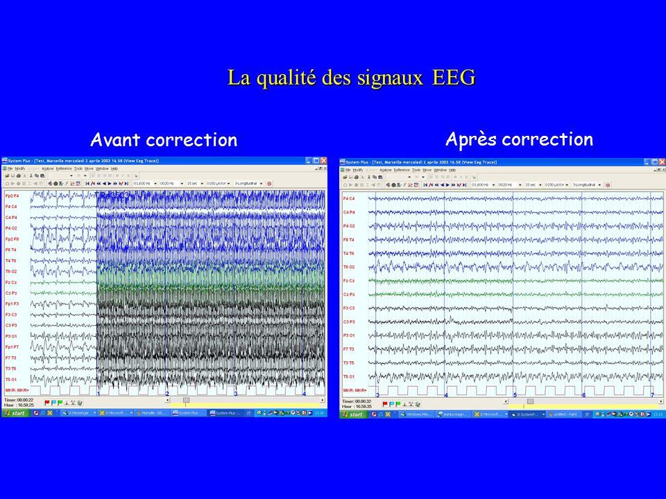 La qualité des signaux EEG