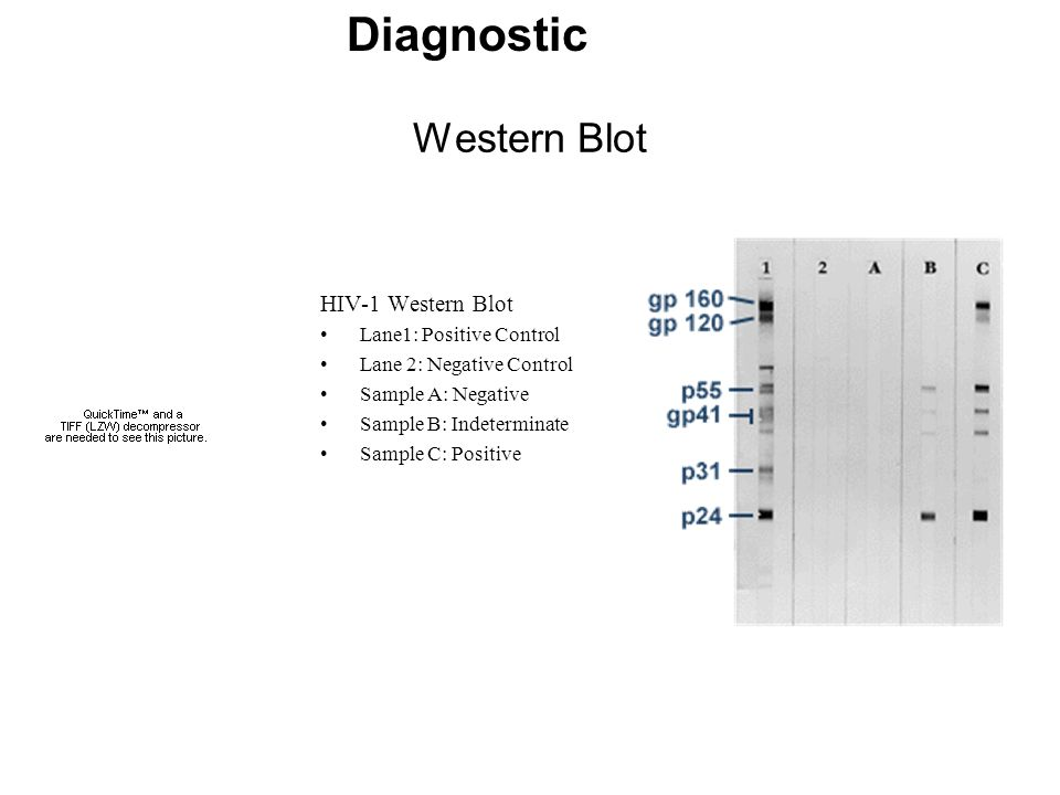Diagnostic Western Blot HIV-1 Western Blot Lane1: Positive Control