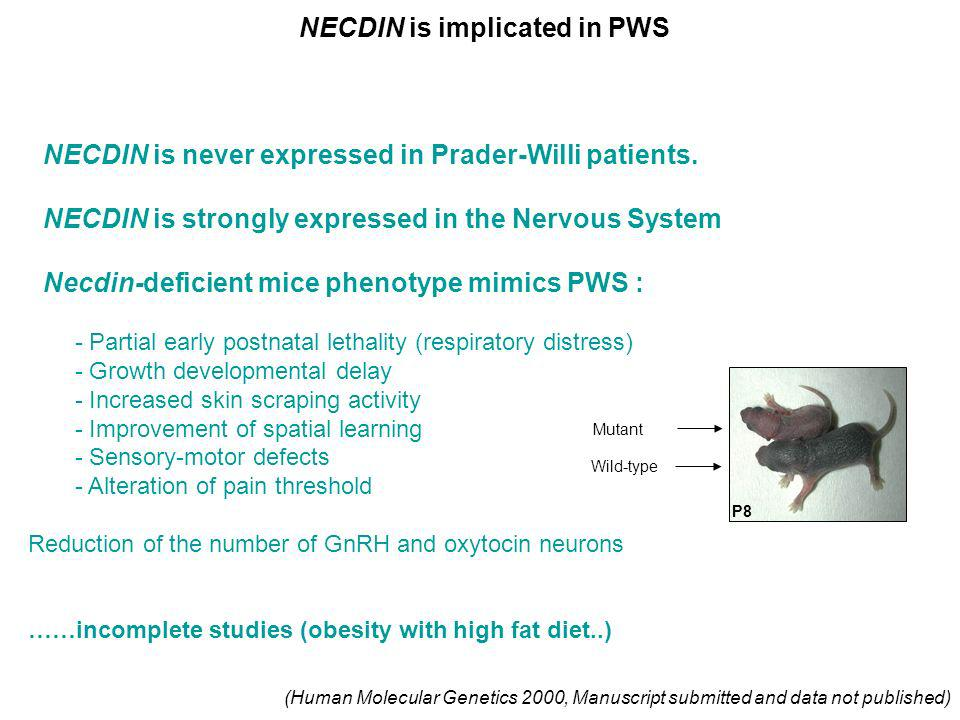 NECDIN is implicated in PWS
