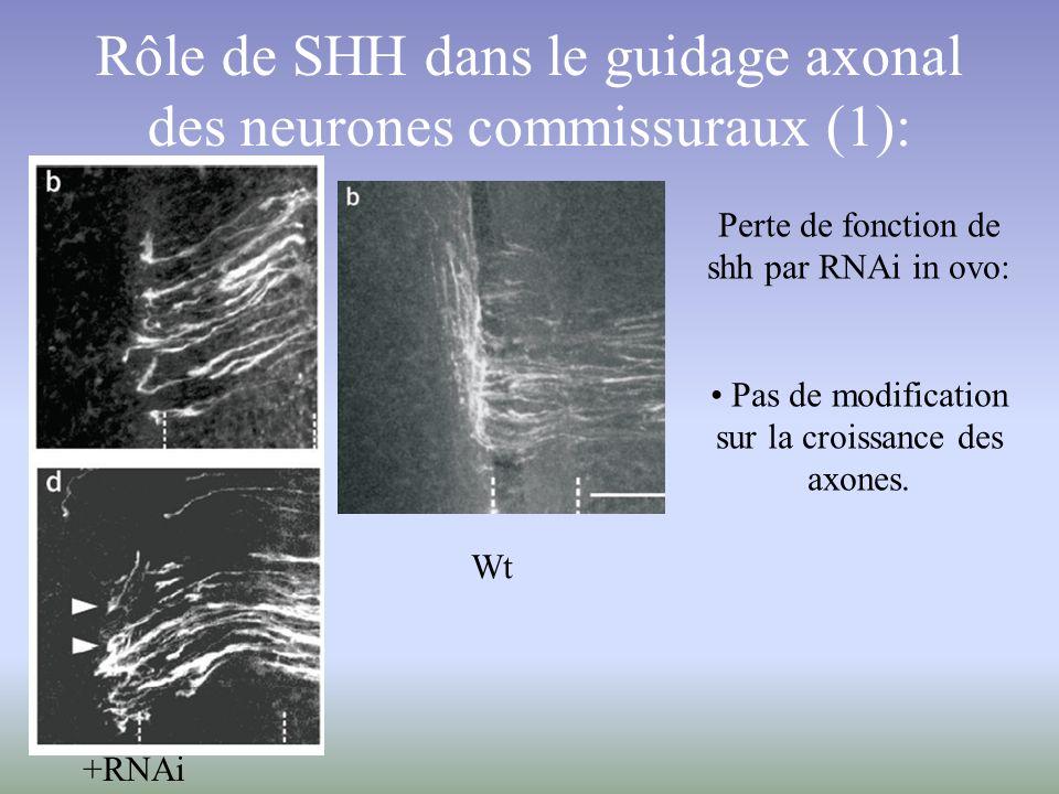 Rôle de SHH dans le guidage axonal des neurones commissuraux (1):