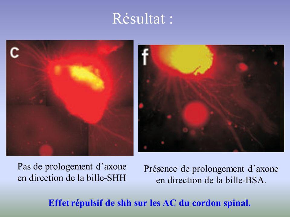 Effet répulsif de shh sur les AC du cordon spinal.
