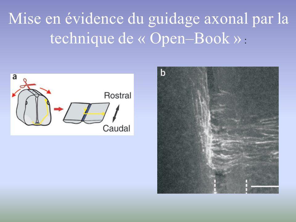 Mise en évidence du guidage axonal par la technique de « Open–Book » :