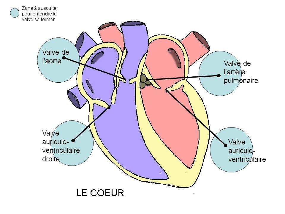 Valve de l'artère pulmonaire