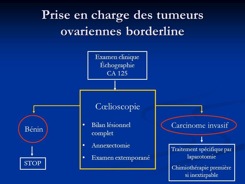 Prise en charge des tumeurs ovariennes borderline