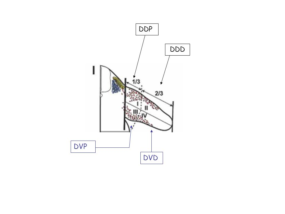 DDP DDD DVP DVD
