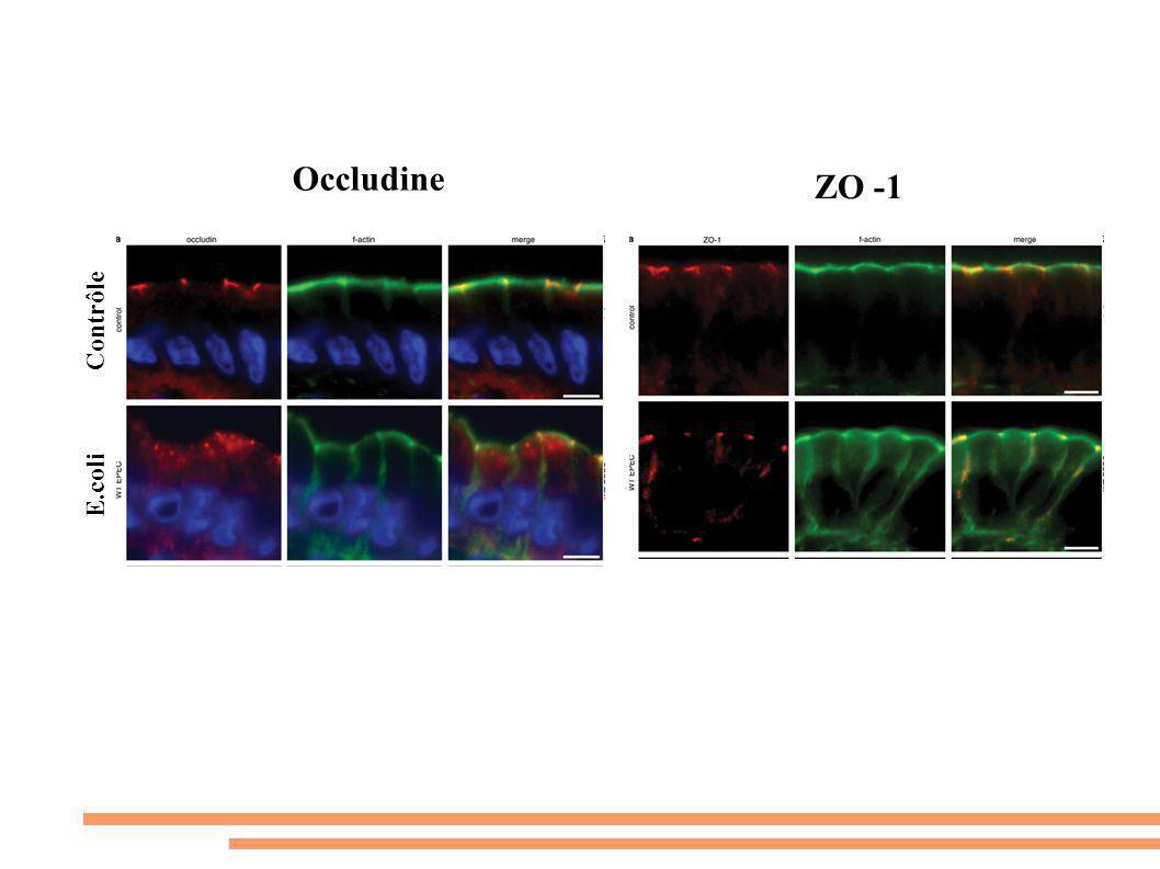 Occludine ZO -1 Contrôle E.coli