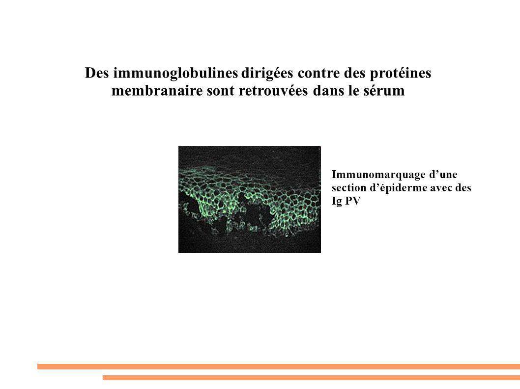 Des immunoglobulines dirigées contre des protéines membranaire sont retrouvées dans le sérum