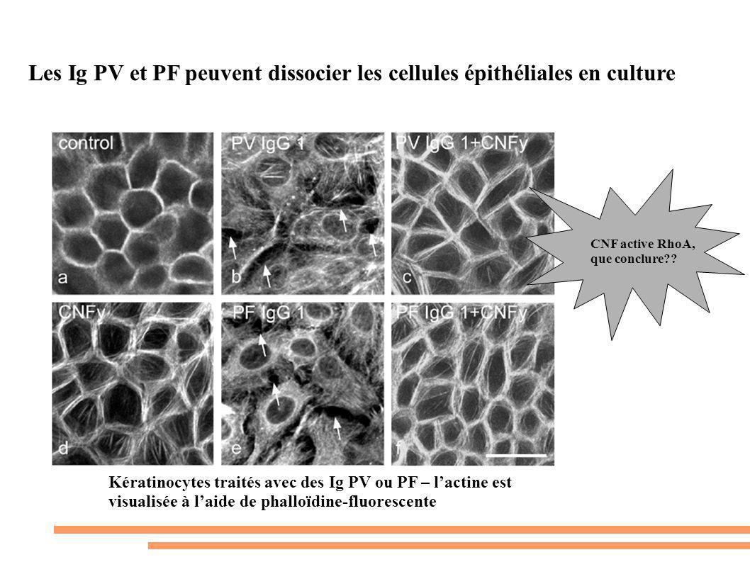 Les Ig PV et PF peuvent dissocier les cellules épithéliales en culture