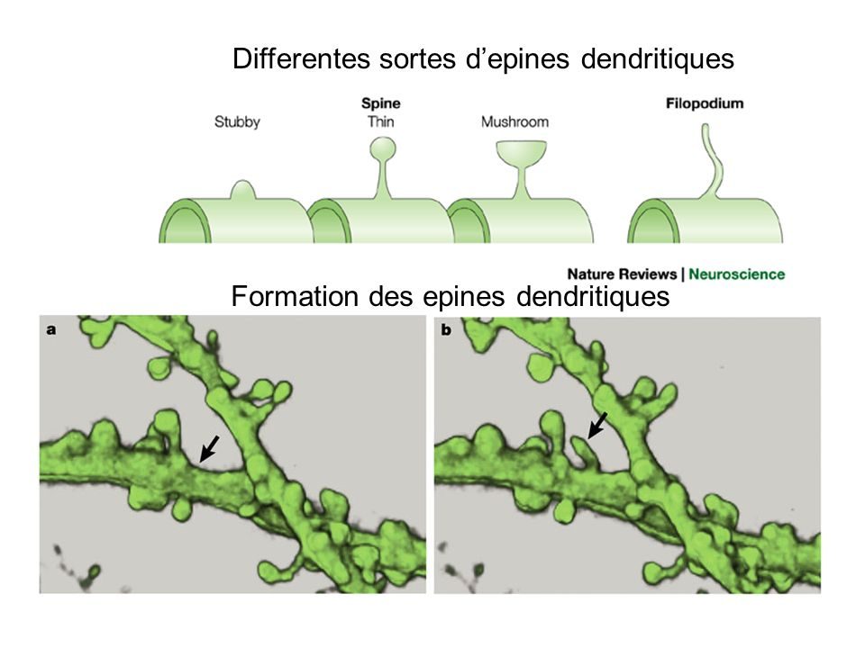 Differentes sortes d'epines dendritiques