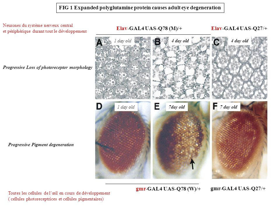 FIG 1 Expanded polyglutamine protein causes adult eye degeneration