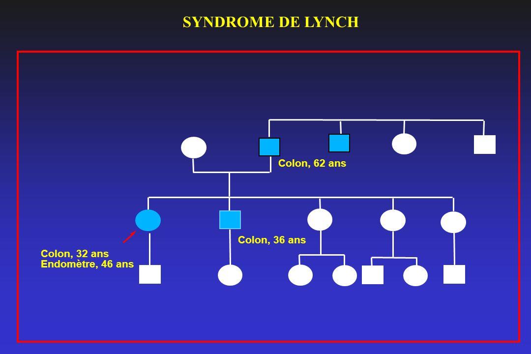 SYNDROME DE LYNCH Colon, 62 ans Colon, 36 ans Colon, 32 ans