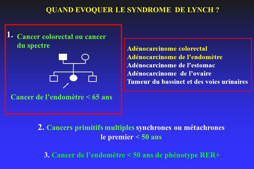 2. Cancers primitifs multiples synchrones ou métachrones